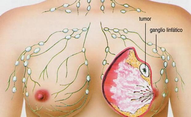 Resultado de imagem para vinho e o cancer d emama