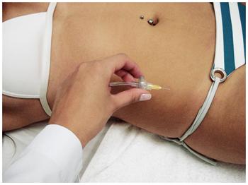 carbox-carboxiterapia-corpo-beleza-tratamento-estetico-estetica-barriga